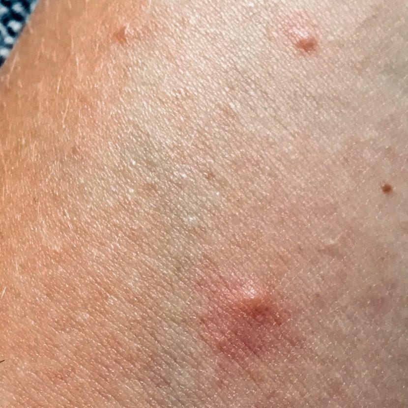 Mücke Mückenstich Moskito Jucken